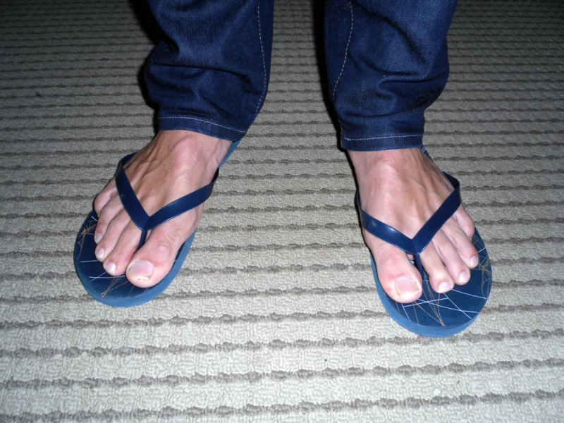 Dollar Stores Issue Massive Sandal Recall
